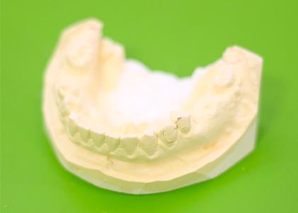 歯の模型作成