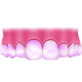歯周ボケットの検査・磨き残しチェック