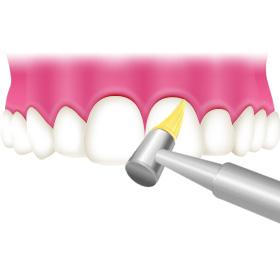 超音波による歯石除去、清掃・研磨(PMTC)